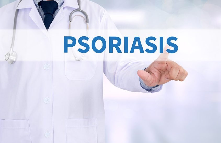 Psoriasis | My Journey with Deadly Diseases